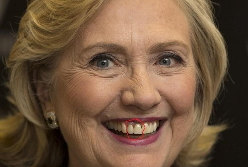 dentist teeth election 2016 bridge - 637957