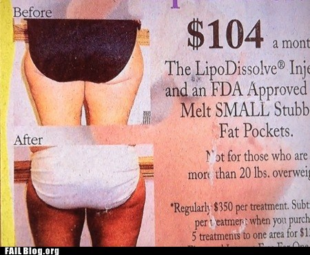 Before And After underwear weight loss - 6391183104