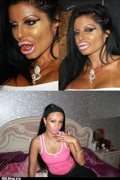 collagen,fail nation,g rated,lip implants,plastic surgery