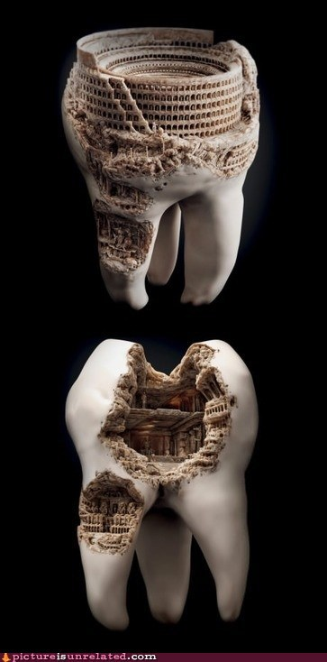 art carving cavities teeth wtf
