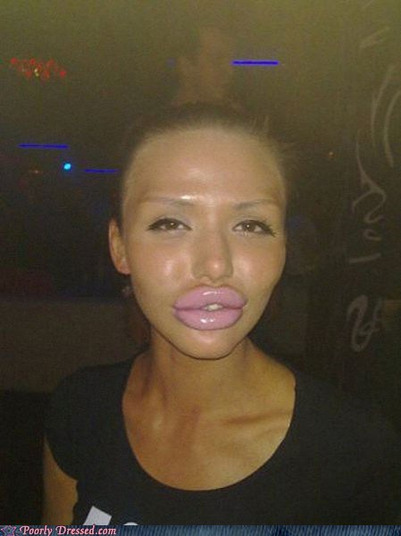 club,duck lips,oh god why,plastic surgery