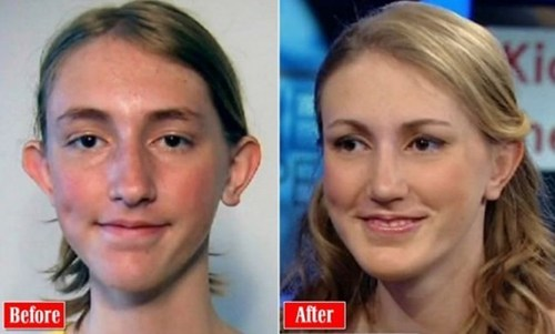 bullying controversial plastic sur plastic surgery teen bullying teen plastic surgery - 6471924224