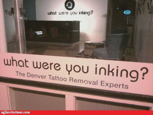 tattoo parlors,tattoo removal