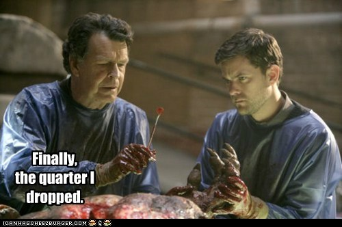 John Noble Walter Bishop joshua jackson quarter peter bishop dropped surgery Fringe - 6597408256