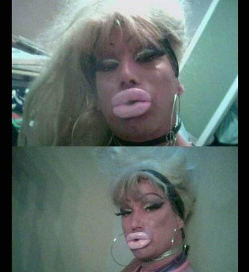 collagen drag queen duckface
