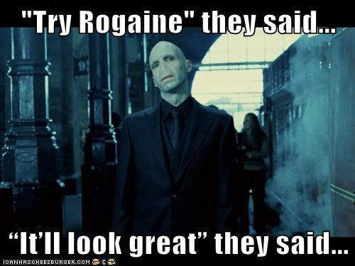 Harry Potter,voldemort,bald,ralph fiennes,nose,rogaine,They Said