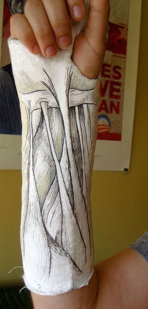 cast design injury art best of week Hall of Fame - 6653901824