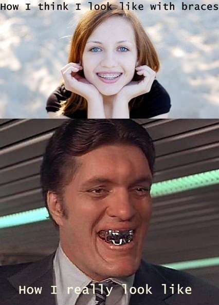 braces ginger jaws james bond - 6658999040