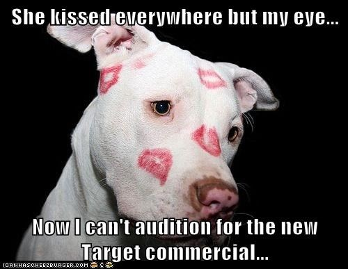 She kissed everywhere but my eye...  Now I can't audition for the new Target commercial...