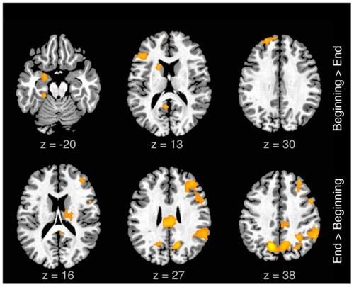 rap experiment brain neuroscience - 6772905472