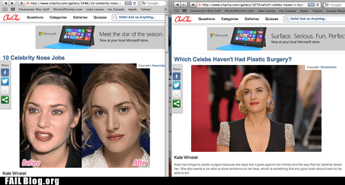 plastic surgery,headline,kate winslet,celeb