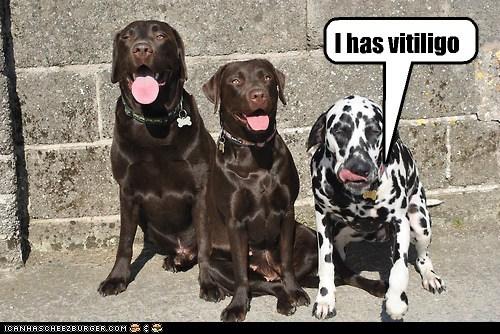 I has vitiligo