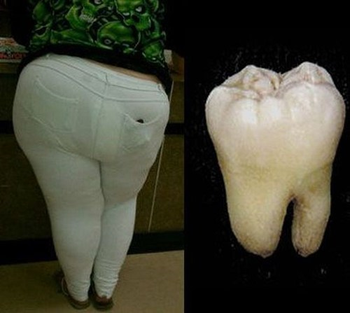 who wore it better,teeth,butts