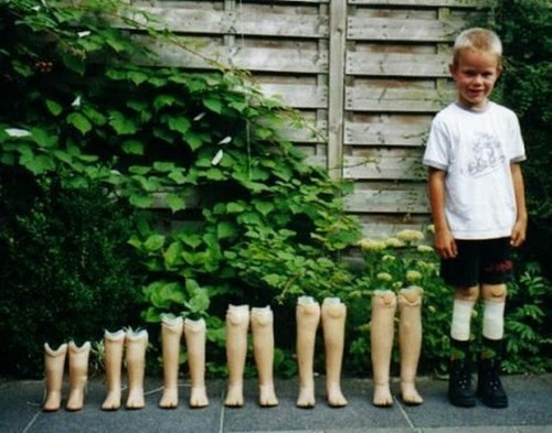 prosthetics,growing up,legs