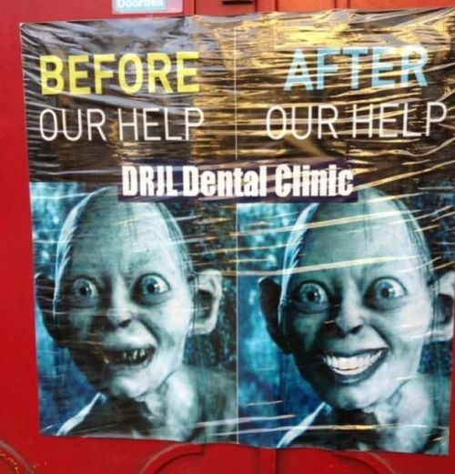 after,dental clinic,Lord of the Rings,gollum,before