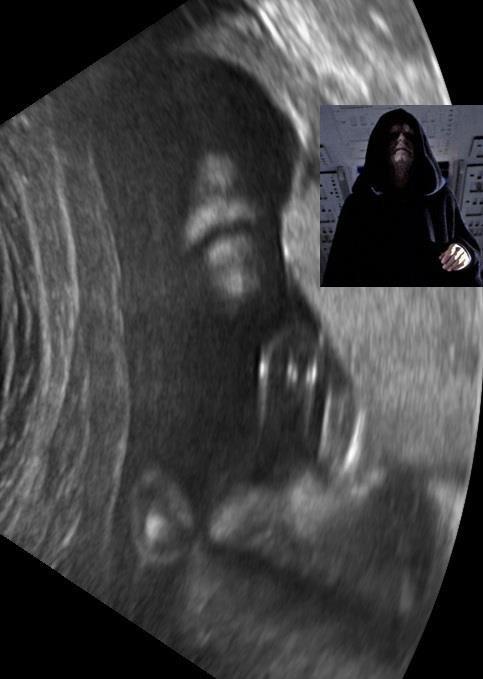 look alikes star wars ultrasounds - 7121427968