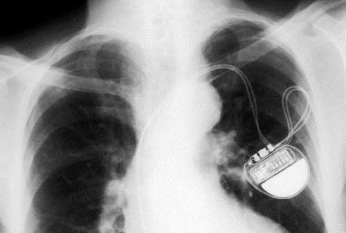 x ray medicine pacemaker - 7121928448