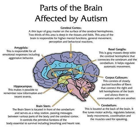 austims neurology brain science - 7683469824