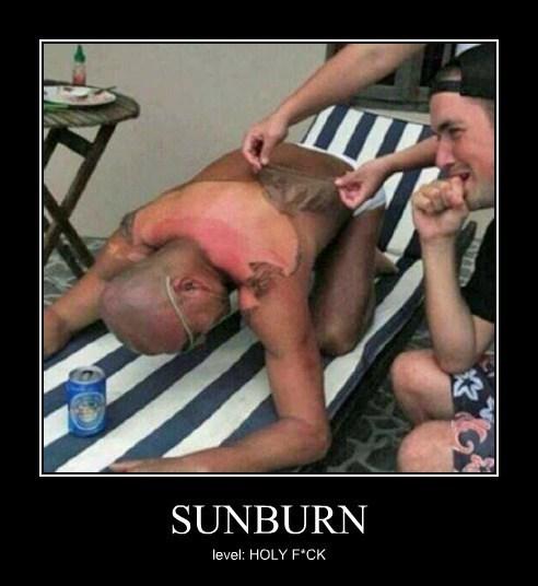 peeling tan eww sun - 7705953024