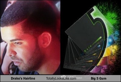 Drake's Hairline Totally Looks Like 5 Gum