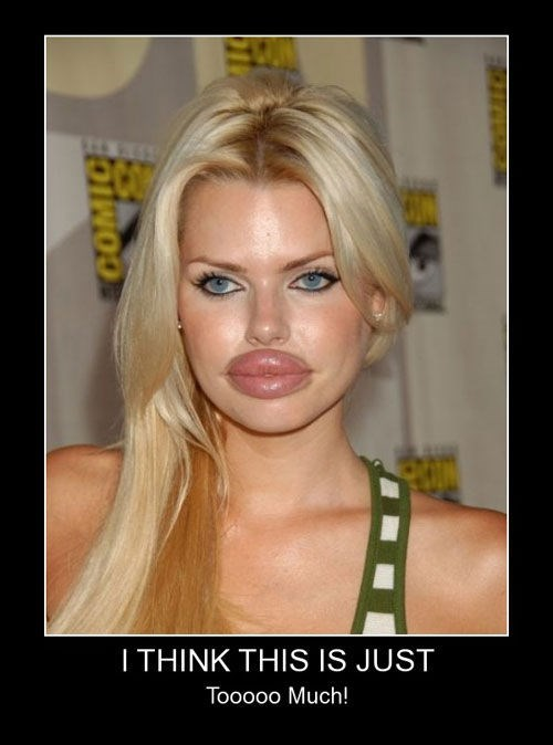 plastic surgery,lawsuit,lips,funny