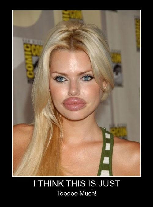plastic surgery lips funny - 7824956928