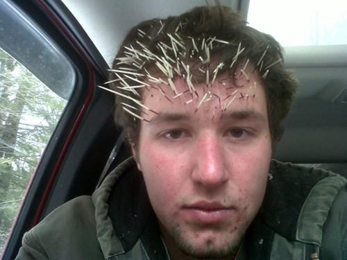 FAIL funny mistake karma porcupine ouch - 7941063680