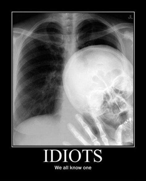 funny idiots wtf x ray - 8180341760