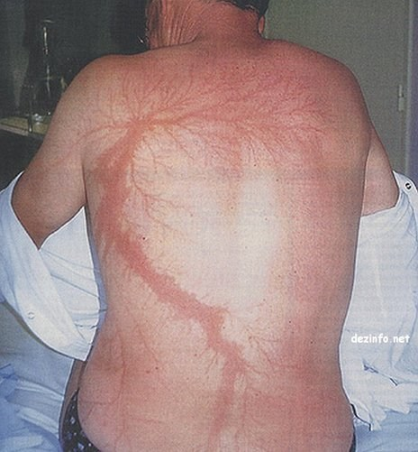 Burn Art from a Lightning Strike