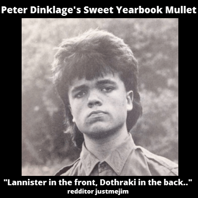 celeb hair peter dinklage mullets yearbook tyrion lannister - 8211053824