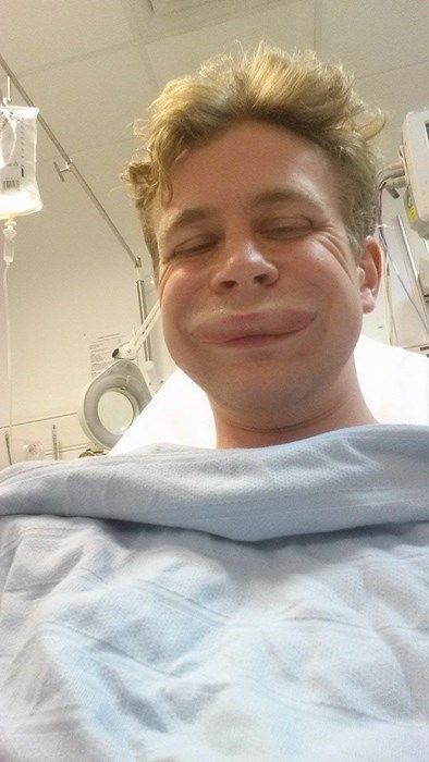 allergic reaction Photo selfie - 8224602624