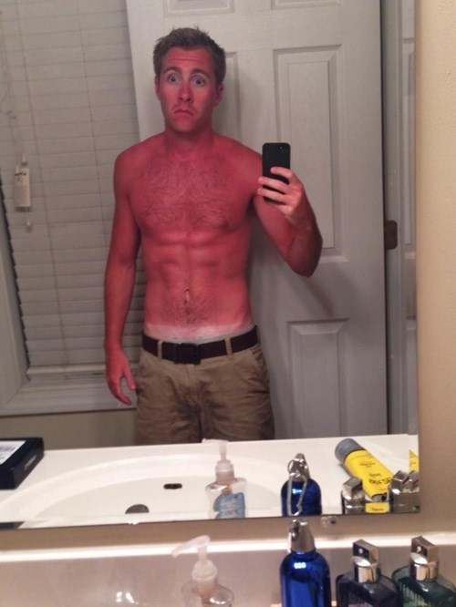 mirror pic,poorly dressed,sunburn,tan lines,selfie