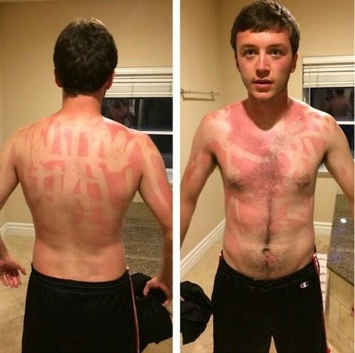 ouch summer sunburn - 8272787200