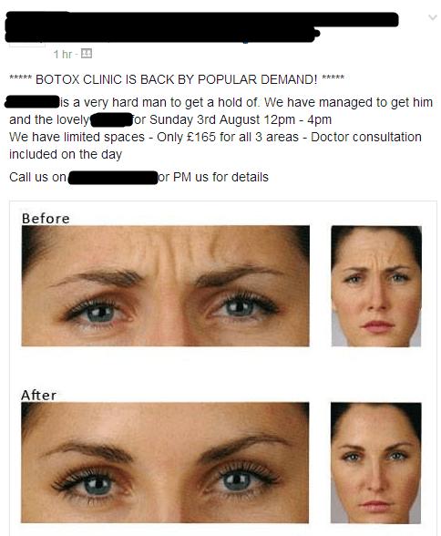 botox,surgery
