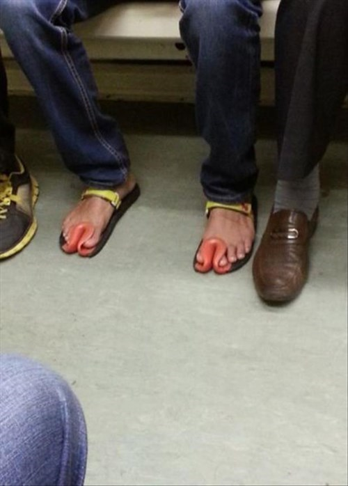 feet poorly dressed sandals