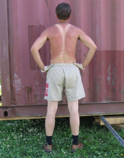 poorly dressed,sunburn,suspenders,tan lines