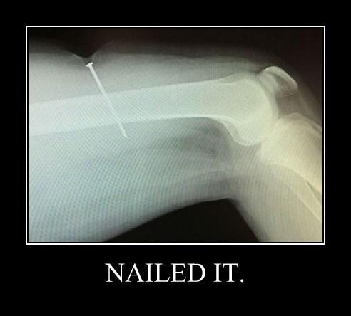 wtf funny Nailed It leg - 8362143744