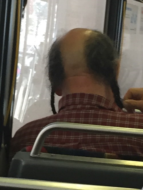 braid bald hair poorly dressed - 8398691584