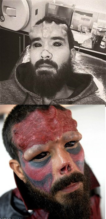 funny-fail-photo-body-mod-red-skull