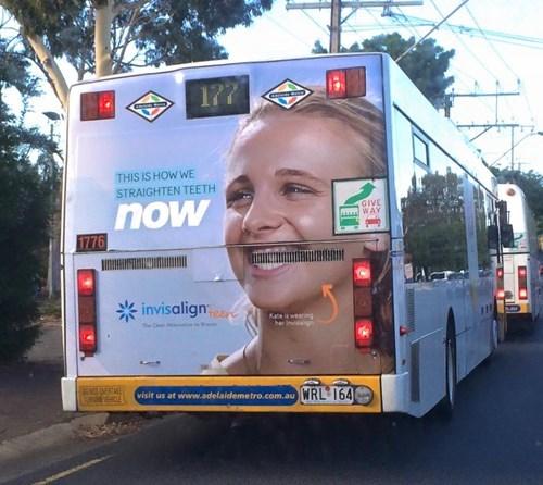 funny-fail-pic-ad-bus-braces