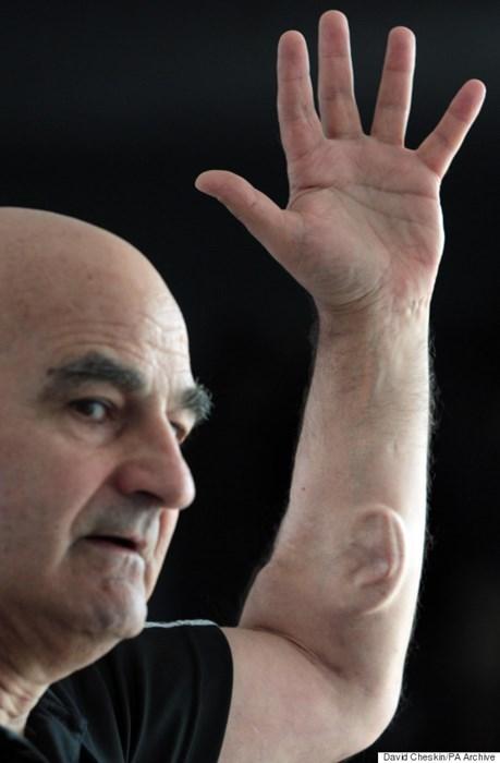 An Australian professor put an ear in his arm for art.