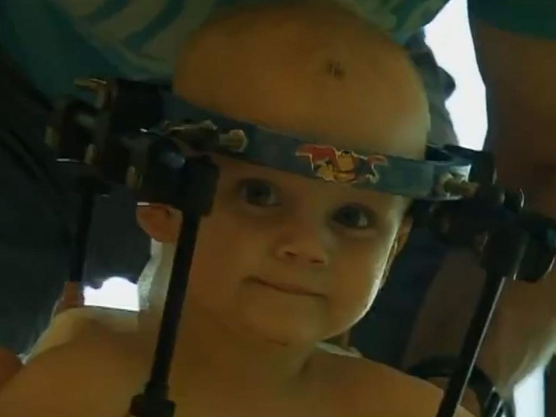 Toddler gets his head reattached after being decapitated internally.