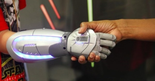 Invention of the Day: Company Creates Marvel, 'Star Wars' and 'Frozen' Bionic Arms For Kids