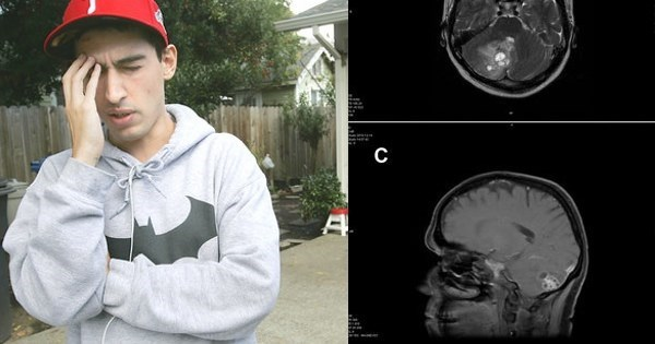 Nope Nope Nope of The Day: California Student Has Live Tapeworm Removed From Brain After Migraine Troubles