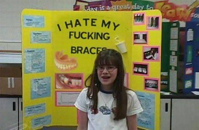 braces science project parenting - 8806016512