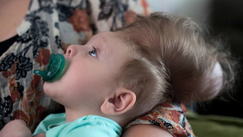 parenting-baby-born-with-skull-outside-his-head-pioneering-surgery