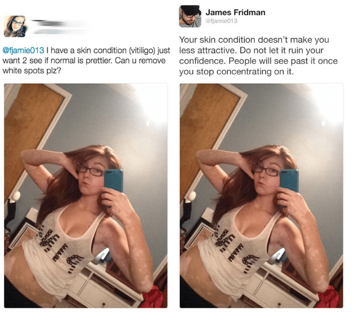 photoshop trolling - Hair - James Fridman @fjamie013 Your skin condition doesn't make you less attractive. Do not let it ruin your confidence. People will see past it once you stop concentrating on it. @fjamie013 I have a skin condition (vitiligo) just want 2 see if normal is prettier. Canu remove white spots plz? y