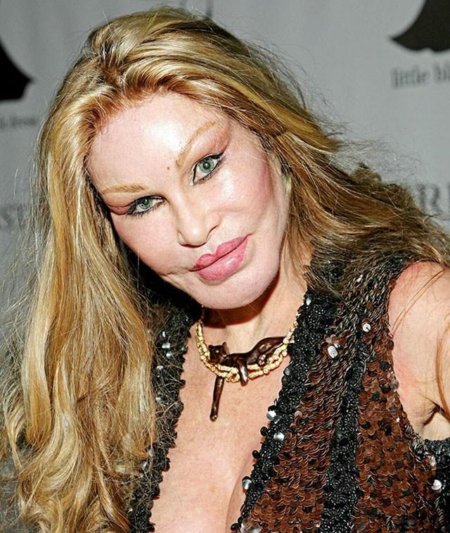 too much plastic surgery - Hair - Btle bi