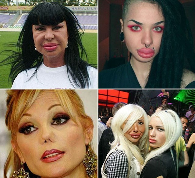 too much plastic surgery - Face - HAIRA,LILA