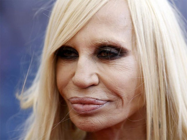 too much plastic surgery - Face